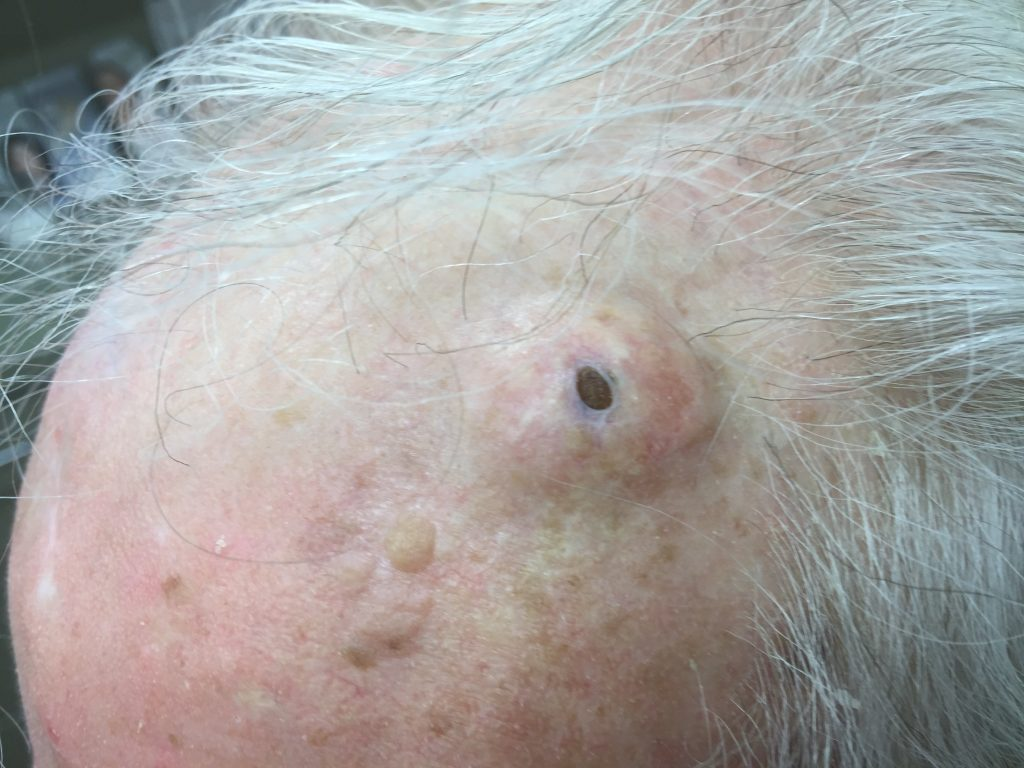 Gigantic Blackheads Dilated Pore Of Winer Explained Dr