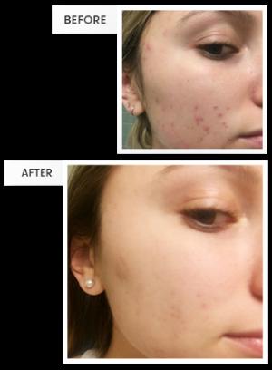 Dr Pimple Popper Official Website